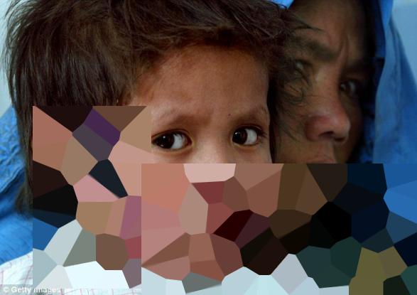 Η φρικτή ασθένεια που «σκορπούν» οι τζιχαντιστές (Σκληρές εικόνες)