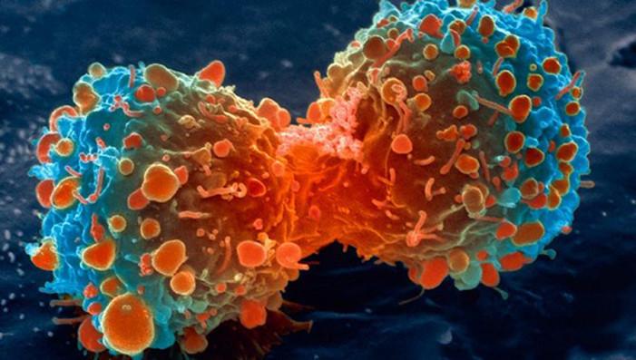 Επαναστατική ανακάλυψη για τον καρκίνο: Θεραπεύτηκαν 9 στους 10 με λευχαιμία σε τελικό στάδιο