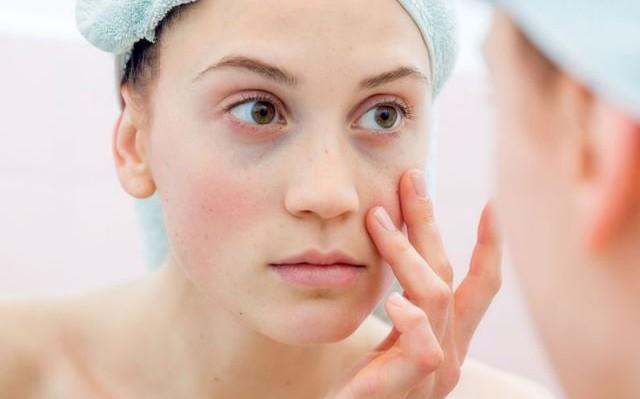 Σακούλες στα μάτια: Ποιες φυσικές ουσίες τις μειώνουν αισθητά
